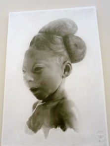 Foto cera anatomica con deformazioni - Museo L. Cattaneo - Bologna